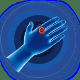 warts hands